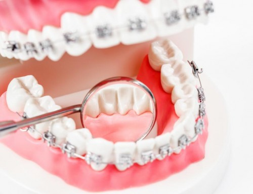 Reasons Why You Need to Offer Dental Insurance for your Employees